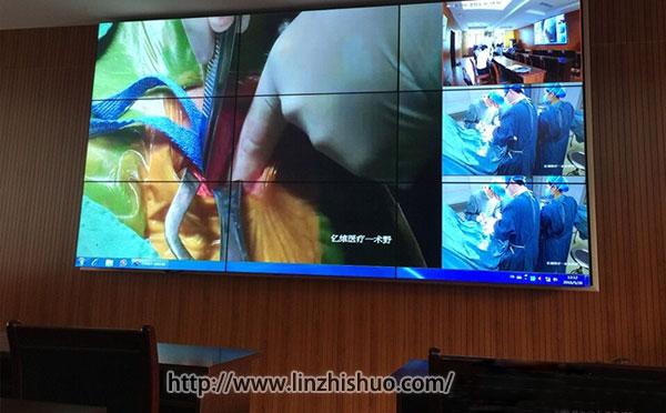 医院手术示教系统