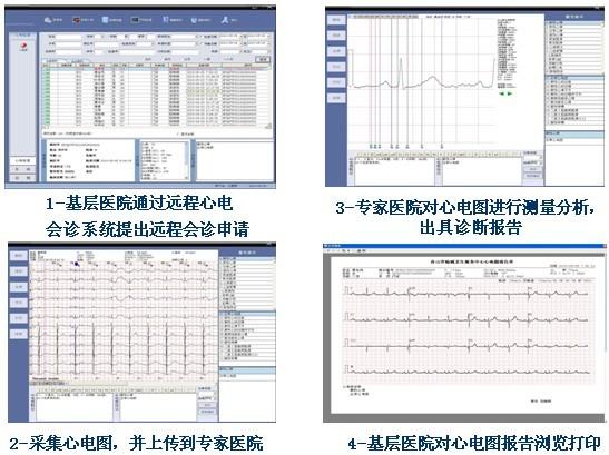远程心电诊断系统